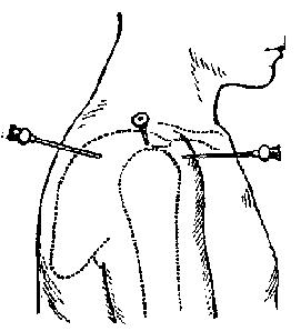 Прокол лучезапястного сустава - Лечение Суставов