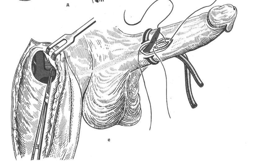 Ситуационные задачи по теме «Травма органов мочевой и мужской половой систем»