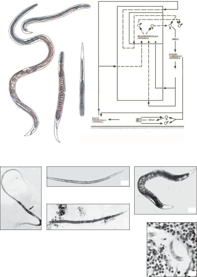 parazitológia trichocephalosis a condyloma kezelése férfiaknál gyógyszerek