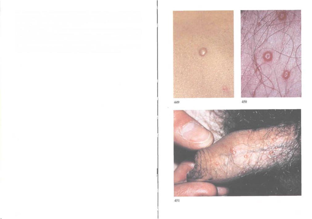 A prosztatitis tonszillitis kommunikációja