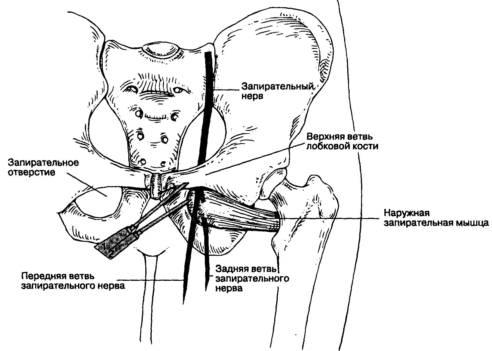 Ввести член при низкой лобковой кости