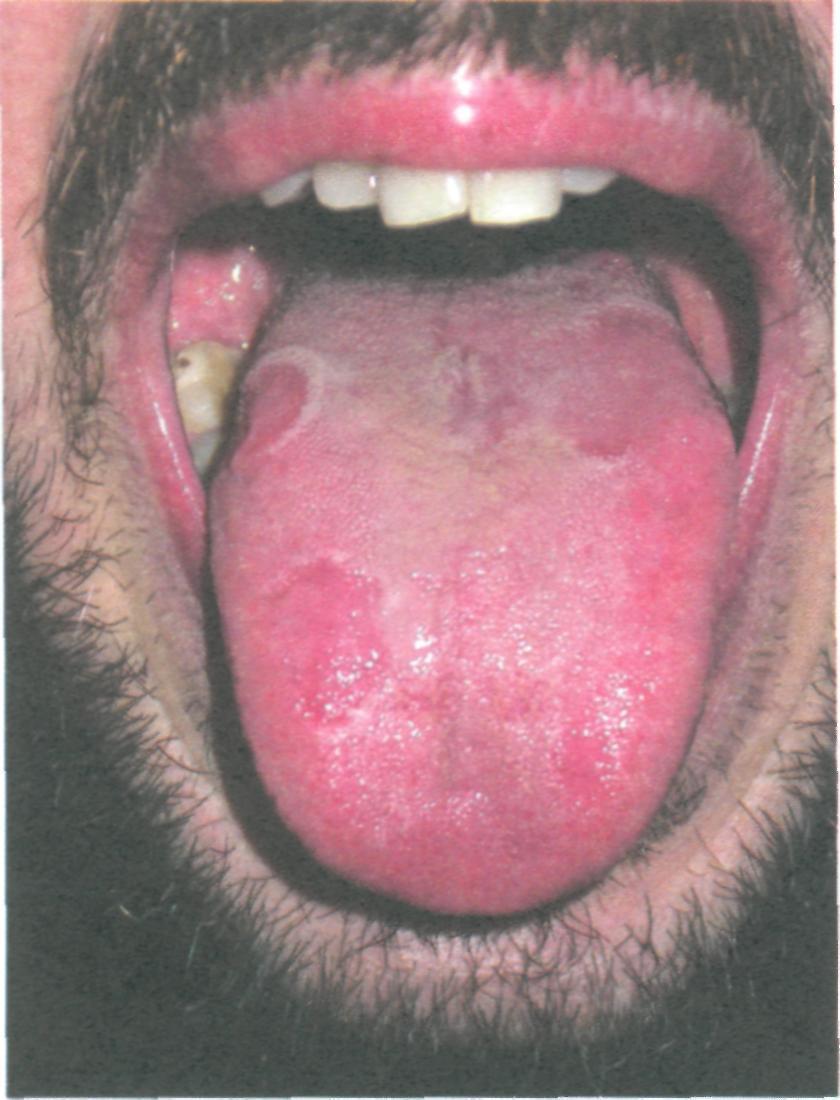Глава 6. Изменения слизистой оболочки полости рта при некоторых системных заболеваниях и нарушениях обмена веществ