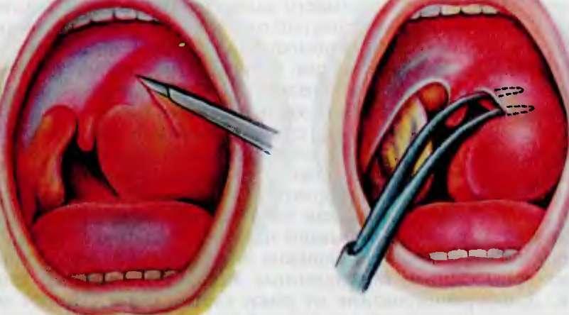 Чаще всего развивается несимметричное поражение суставов, только на одном колене.