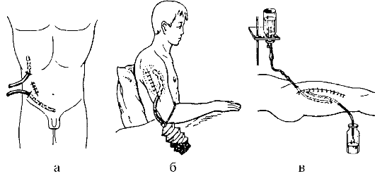 Алгоритм уход за дренажами в ране полостях