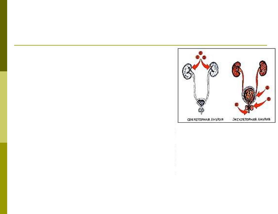 Презентация на тему: Нарушения диуреза при снижении концентрационной способности почек при хронической почечной недостаточности (ХПН)