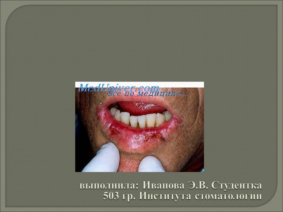 Травма челюстно лицевой области презентация