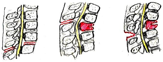 Травма позвоночника и таза реферат 112