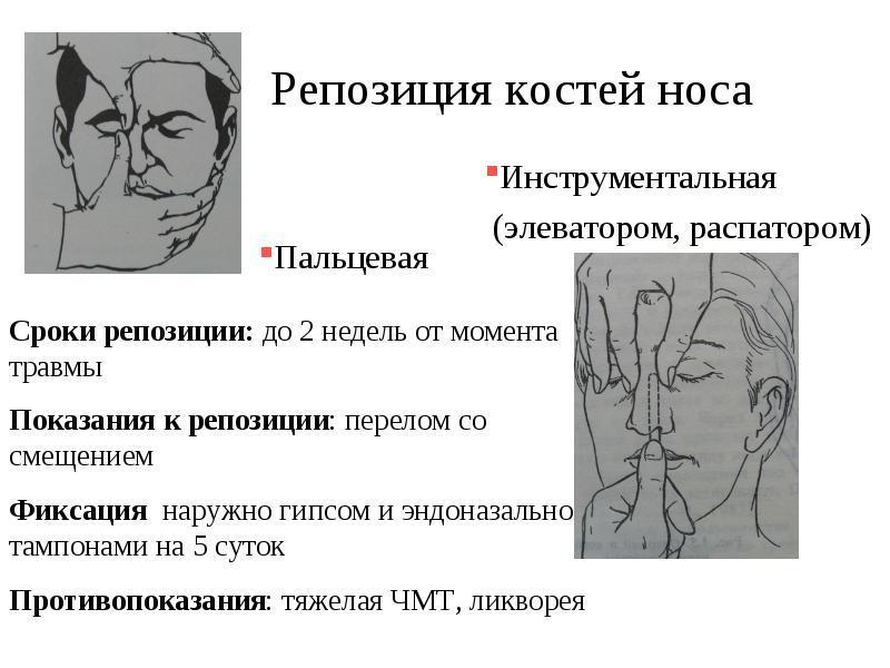Элеватор для репозиции костей носа двери т4 транспортер