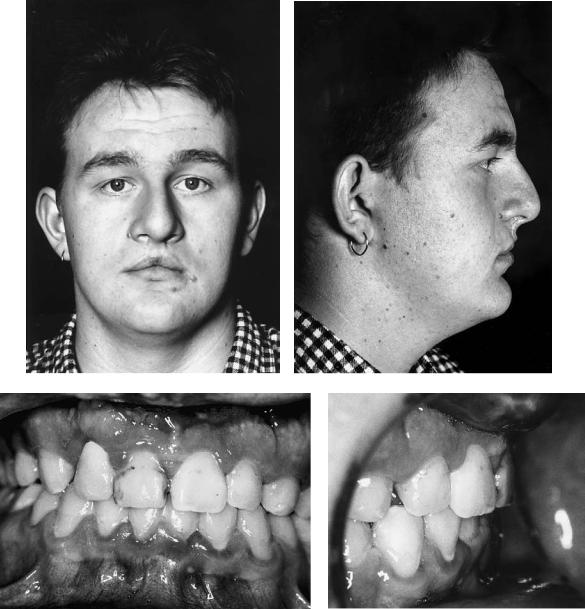 48  Reconstruction of Cleft Lip and Palate Osseous Defects and